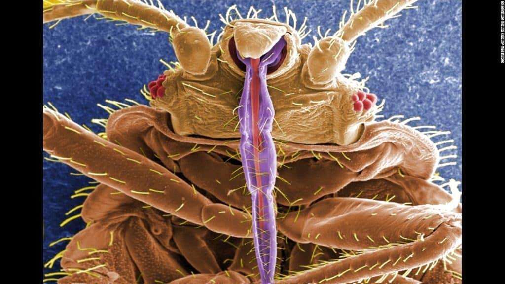 bed bug calgary